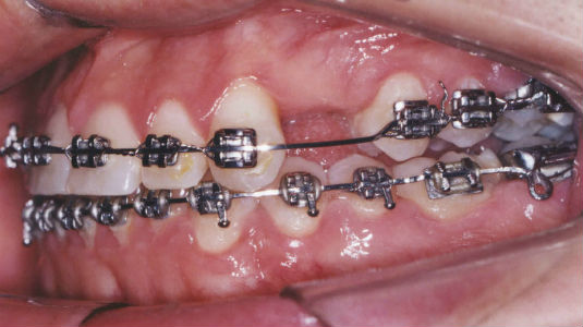 Dental Implants - Before Dental Implant Treatment