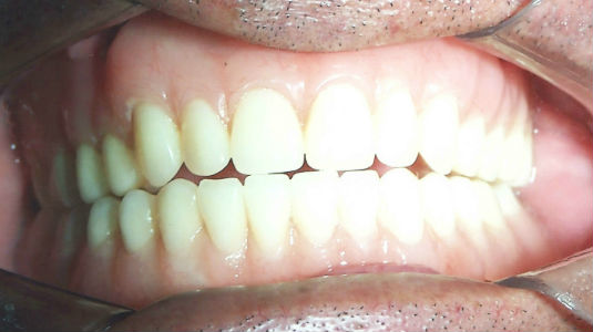 Dental Implants - Dental Implant Treatment Results 3