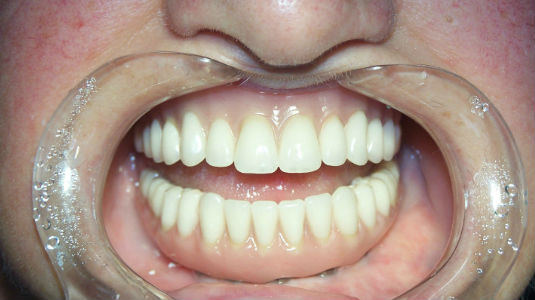 Patient's smile after full mouth restoration with dental implants