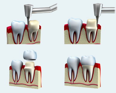 Dental Crown Treatment Procedure