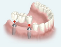 Implant supported bridge which is used to restore several missing or damaged teeth on one side.