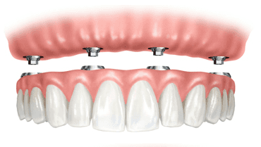 All on 4 Dental Implants. Removable dentures.