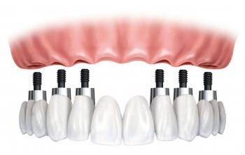 Full Mouth Restoration. 6 dental implants. 12-unit bridge.