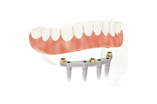 All on 4 dental implants with Removable Dentures used for Full Mouth Restoration treatment.