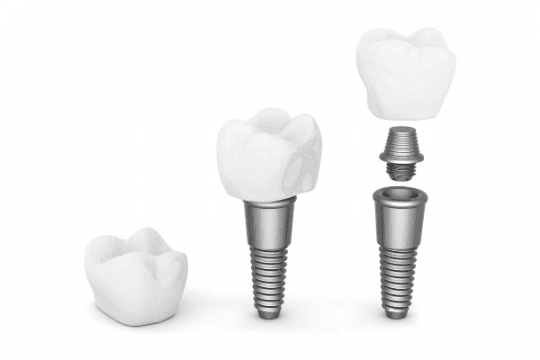 Our Implant Brands - Dental Implants