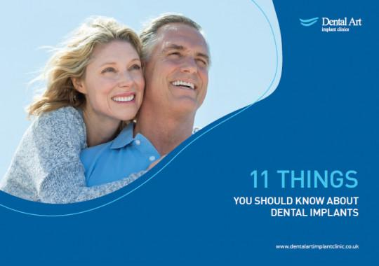 Your Free Dental Implant Guide