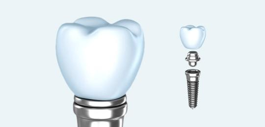Dental implant close up and a dental implant divided into 3 parts - crown, abutment and titanium screw