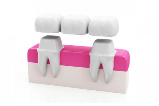 dental_bridges